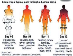Tahapan mematikan ebola. Menyebar dari Afrika ke dunia.